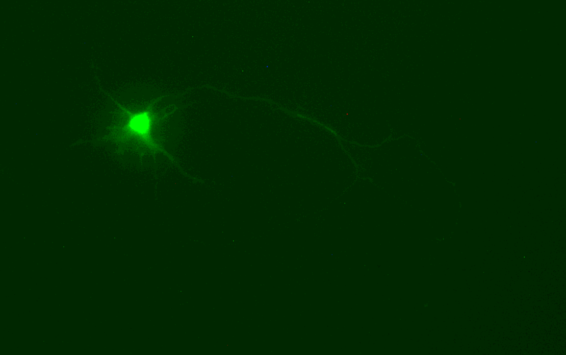 Lucifer Yellow injected into a mouse primary neuron.