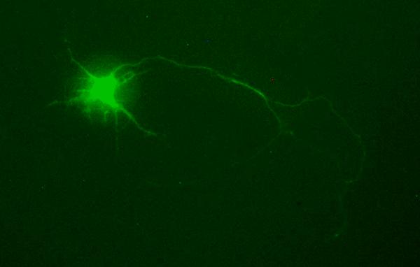 FluidFM CRISPR cell line development -  Injected neuron. Courtesy Sen Yan, Jinan University.